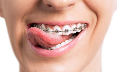 In 2019 You Can Show Off The Results Of Your Orthodontics While Hiding The Treatment