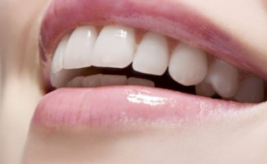 All On 4 Dental Implants: A Complete Guide To This False Teeth Option