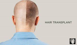 Hair Restoration and Transplant