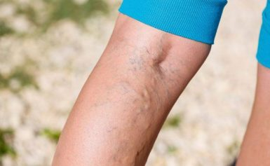 How Can You Prevent Varicose Veins?