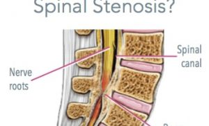When to go for an Epidural Steroid Injection