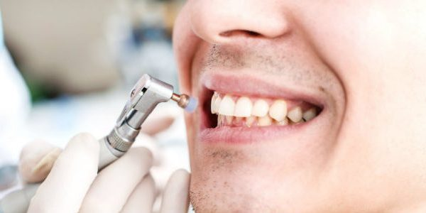 What are the health benefits of healthy teeth?