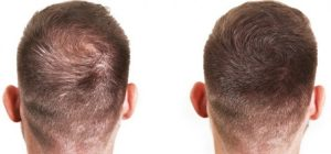 The hair thinning problem is a big issue