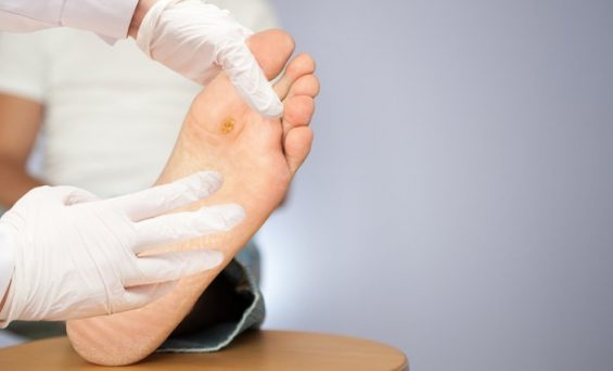 Complications of Diabetic wounds