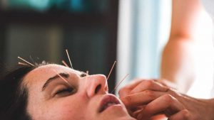 Ultimate Benefits You'll Receive With Acupuncture Therapy - READ HERE