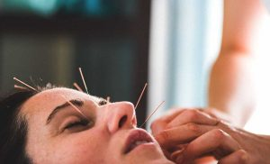 Ultimate Benefits You'll Receive With Acupuncture Therapy – READ HERE