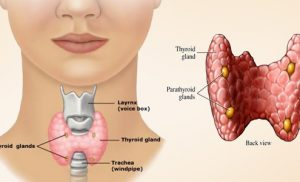 What You Need to Know About Thyroid Surgery