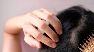 The ultimate solution for restoring lost hair with effective pills