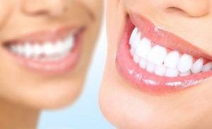 How is Tooth Bleaching Done?