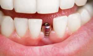 What You Need to Know Before Getting Dental Implants