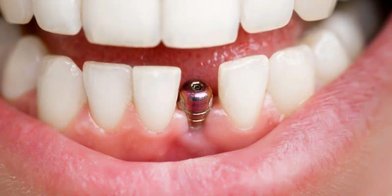 Know Before Getting Dental Implants