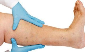 Expert Vein Specialists in Florida