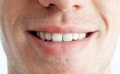 Teeth Whitening in Santa Clarita