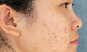 Acne: Symptoms, Causes, Treatment, and Risk Factors