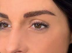 Lift Your Brows and Minimize Wrinkles With Botox Injections in Naperville, IL