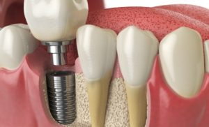 Top 5 Reasons to Go for Dental Implants