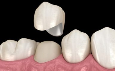 Did You Know About Dental Crowns and Bridges?