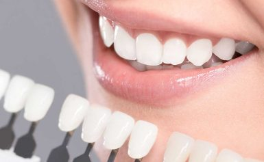 How to Maintain a Perfect Smile After Teeth Whitening