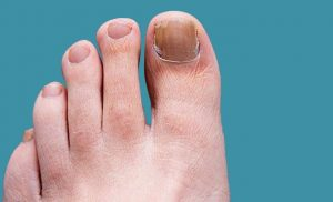 Ingrown Toenail Treatment Solutions at Diabetic Foot and Wound Center, CA