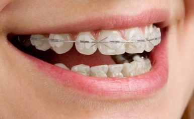 Boost Your Self-confidence with Proper Teeth Whitening Miranda Package from Reputed Cosmetic Dentistry