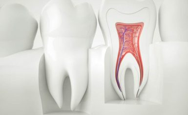 What Everyone Ought to Know About Endodontic Retreatment