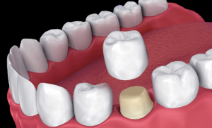 Same-Day Crowns to Get Damaged Teeth Looking New in a Single Appointment