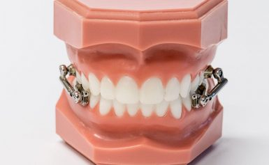 Top 5 Benefits of Using Orthodontic Expanders