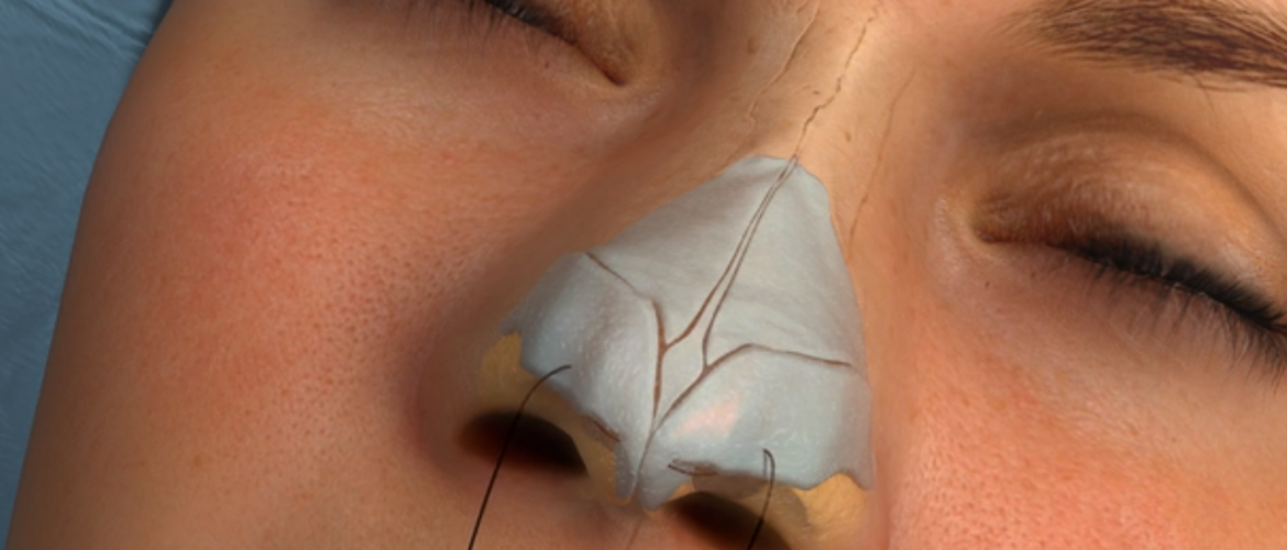 Rhinoplasty Options and Why You Might be Suitable for the Procedure
