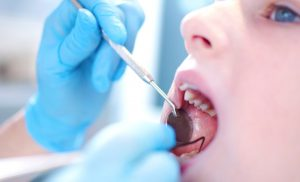 Everything You Need to Know About Teen Dentistry